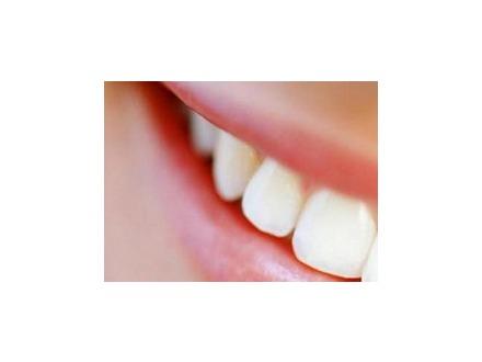 Za izbeljivanje zuba prirodno