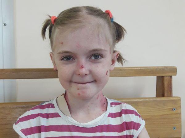 Девочке-бабочке требуется дорогая операция