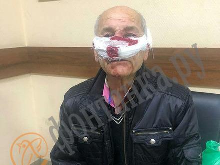 «Врач ударил в переносицу, хлынула кровь». Пенсионер из Петербурга рассказал, как его избили в машине неотложки